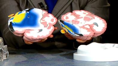 brain_radiation_plume